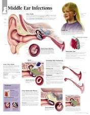 Middle Ear Infection Chart: Wall Chart