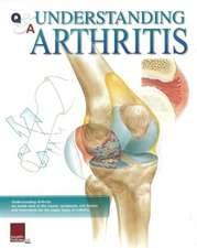 Q&A Understanding Arthritis