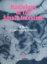 Radiology of the small intestine