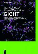 Gicht: Der aktuelle Wissensstand zu Ätiologie, Pathogenese, Diagnostik, Klinik und Therapie