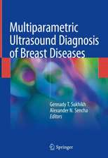 Multiparametric Ultrasound Diagnosis of Breast Diseases