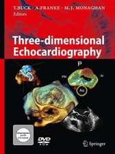 Three-Dimensional Echocardiography [With DVD ROM]