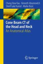 Cone Beam CT of the Head and Neck: An Anatomical Atlas