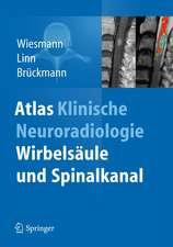 Atlas Klinische Neuroradiologie: Wirbelsäule und Spinalkanal
