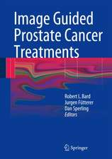 Image Guided Prostate Cancer Treatments