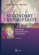 Secondary Rhinoplasty: Including Reconstruction of the Nose