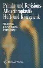 Primär- und Revisions-Alloarthroplastik Hüft- und Kniegelenk: 10 Jahre Endo-Klinik Hamburg