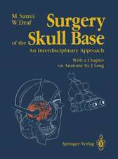 Surgery of the Skull Base: An Interdisciplinary Approach