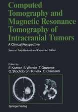 Computed Tomography and Magnetic Resonance Tomography of Intracranial Tumors: A Clinical Perspective