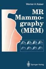 MR Mammography (MRM)