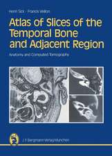 Atlas of Slices of the Temporal Bone and Adjacent Region: Anatomy and Computed Tomography Horizontal, Frontal, Sagittal Sections
