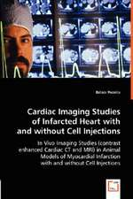 Cardiac Imaging Studies of Infarcted Heart with and without Cell Injections