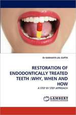 Restoration of Endodontically Treated Teeth: Why, When and How
