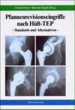 Pfannenrevisionseingriffe nach Hüft-TEP