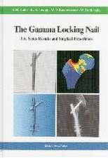 The Gamma Locking Nail