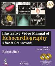 Illustrative Video Manual of Echocardiography Part 2: A Step by Step Approach